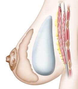 protheses pré-musculaire