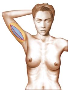 lifting bras1
